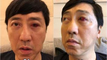 57歲庾澄慶健康亮紅燈!嚇人病情令人憂心