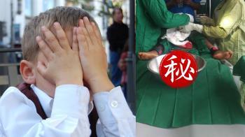 4歲童便秘半年就診!醫開腸…夾出炒麵蛔蟲