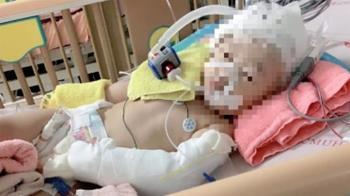 疑遭保母虐待!1歲女童腦出血昏迷…爸淚求真相