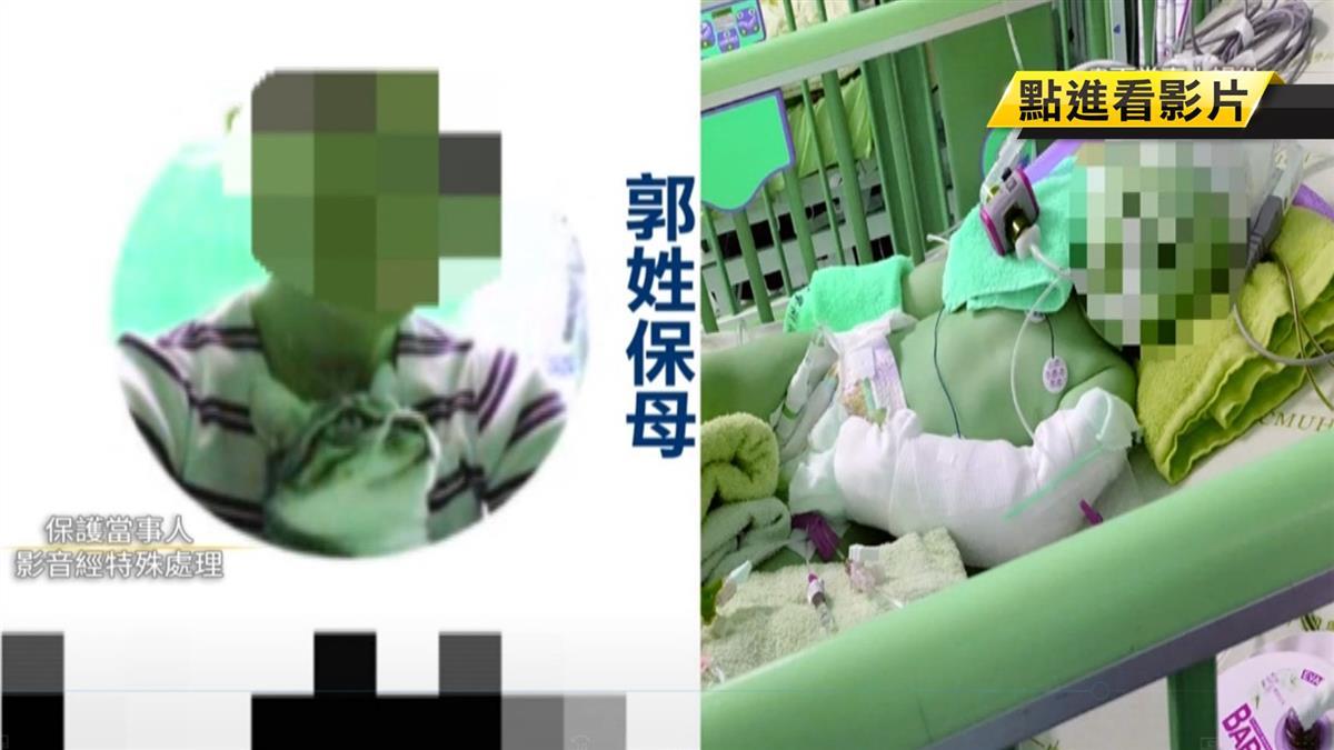 1歲嬰骨折、腦出血昏迷 醫曝:恐人為用手狠扭