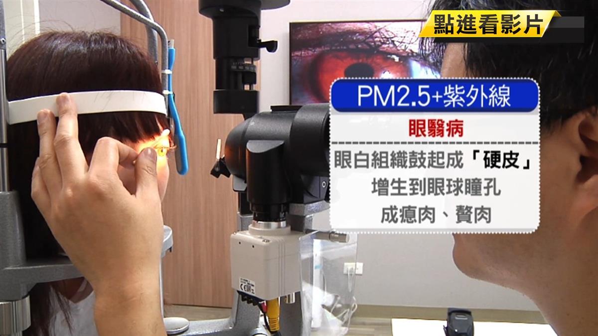 傷眼! PM2.5加上紫外線 眼睛長硬皮、瘜肉