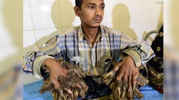 四肢長樹根!男動25次手術沒用 痛到求醫截肢