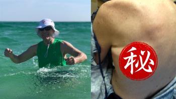 海邊玩水長詭異紅黑斑 癌男48小時離奇喪命