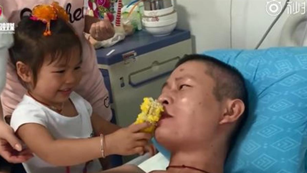 四肢燒成炭!他遭截肢…3歲女兒一句話惹淚崩