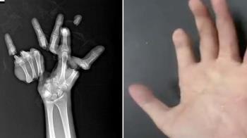 手遭機器捲入!神醫「拼圖」13小時…他幾乎痊癒