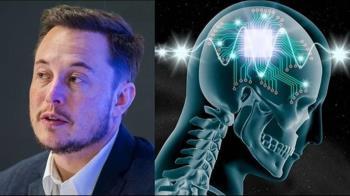 成功率87%!馬斯克創「人腦控電腦」明年人體實驗