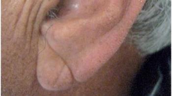 耳垂有皺褶恐罹心血管疾病?醫證實:是真的