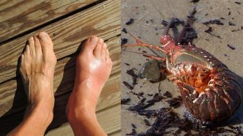 被龍蝦刺傷!35歲男右腳腫大發黑 慘截肢保命