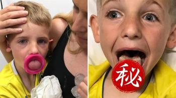 狂吸水壺!6歲童舌頭卡住發黑…急動手術保命