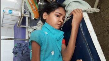 16歲女急需移植…父拒捐腎!只能帶回家等死