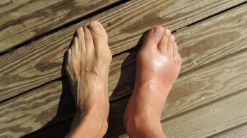 50歲工人被石頭砸到腳!3天後紅腫慘截肢