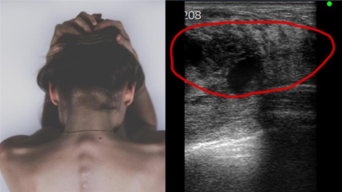 乳房長7公分腫塊…她以為撞傷 醫曝恐怖真相