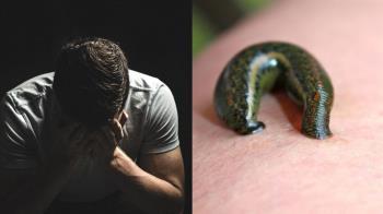 10水蛭放臉上!19歲男大爆血急衝醫院 下場超慘