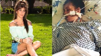 4寶媽被蚊子叮…腿發黑壞死!心臟驟停3分鐘
