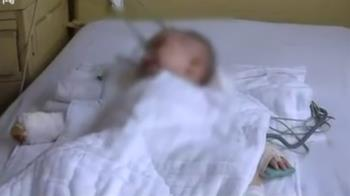 嬰全身燙傷!母塞高粱桶20分鐘 皮爛中毒險死