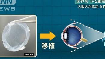 日本創下全球首例 人工角膜救眼睛