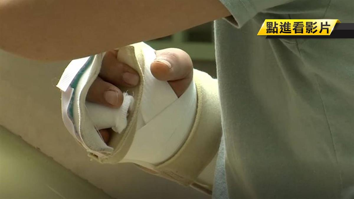 搬東西不慎撞破玻璃門 割傷右手腕爆血險致死