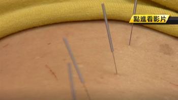 腋下、肩膀、胸腔不能針灸 關鍵原因曝