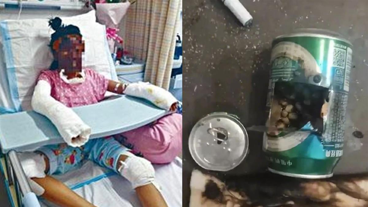 少女啤酒罐烤爆米花…96%燒傷慘死!網紅停更