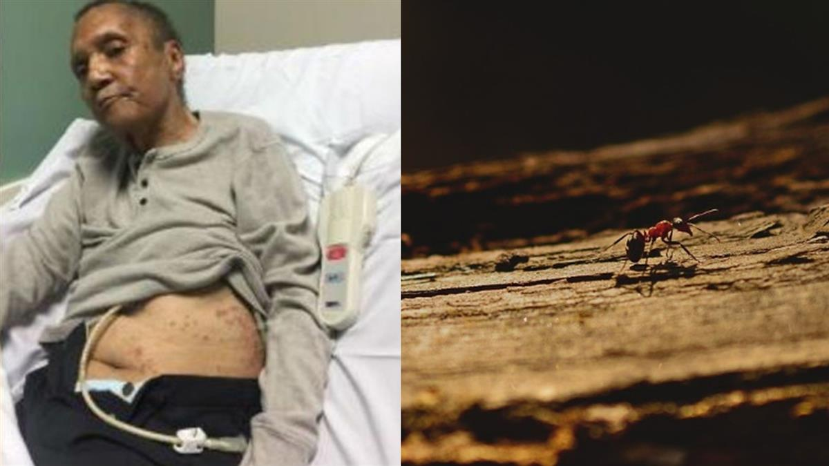 74歲越戰軍人淪螞蟻大餐!滿身紅斑逝 女兒氣炸