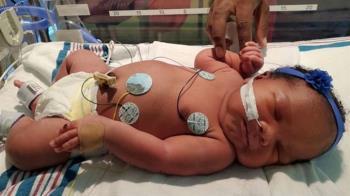 百萬分之一機率!女嬰誕生數字全911 護理師驚呆