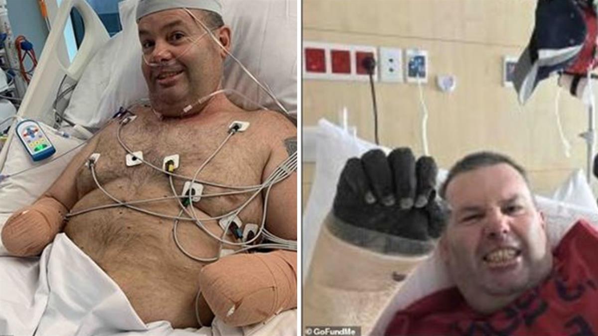 出國玩喉嚨痛!他四肢發黑…昏迷7天慘截肢