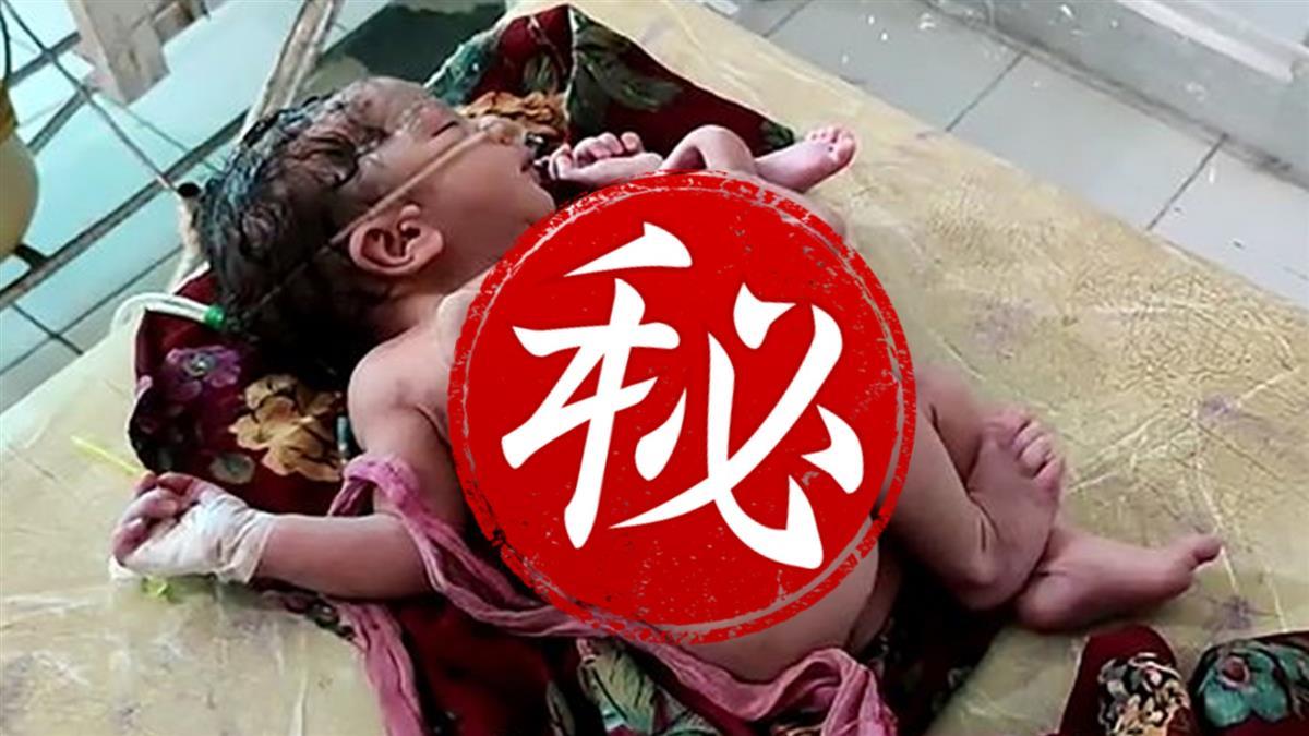 喜迎龍鳳胎!驚見女嬰3手4腳 遭嬰屍殘肢糾纏