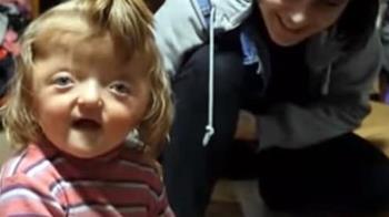天生漏斗頭!2歲妹遭學校拒收 父母揭心碎真相
