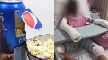 2女用可樂罐爆米花!1人慘死 她四肢炸爛崩潰