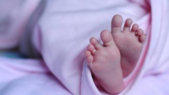 只活70分鐘!她生下無腦畸形嬰 …緊抱到斷氣