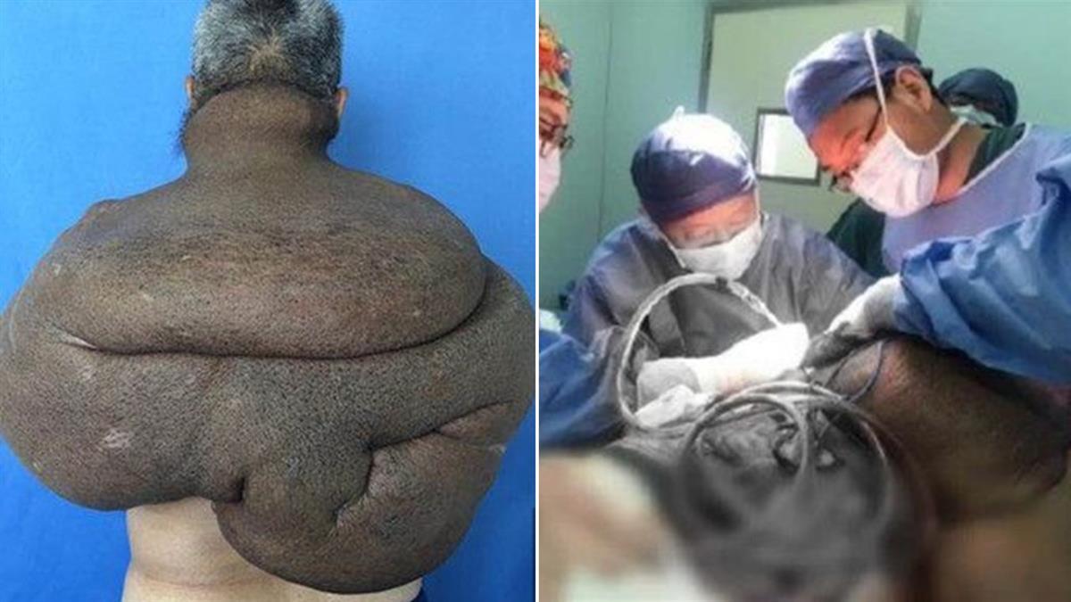 他揹巨大腫瘤30年!醫動員百人開刀…費時33小時