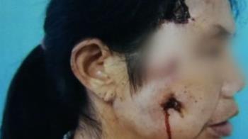 她臉頰黑洞流膿…長8cm樹枝 竟是摔倒惹禍