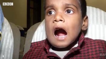 牙瘤再現印度 清奈男童口腔拔牙500顆
