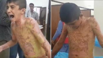 5歲童遭化武轟炸!皮碎剝落 痛哭:拜託停止