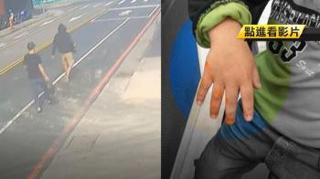 6歲兒失明腳殘!單親母扛家計 遭同行潑漆尋仇