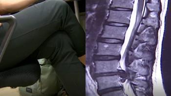 坐下就翹腳?醫曝後果:恐長短腳、肢體麻痺