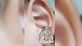 4歲童耳朵現2溢血小洞…疑遭女師拿釘書機虐