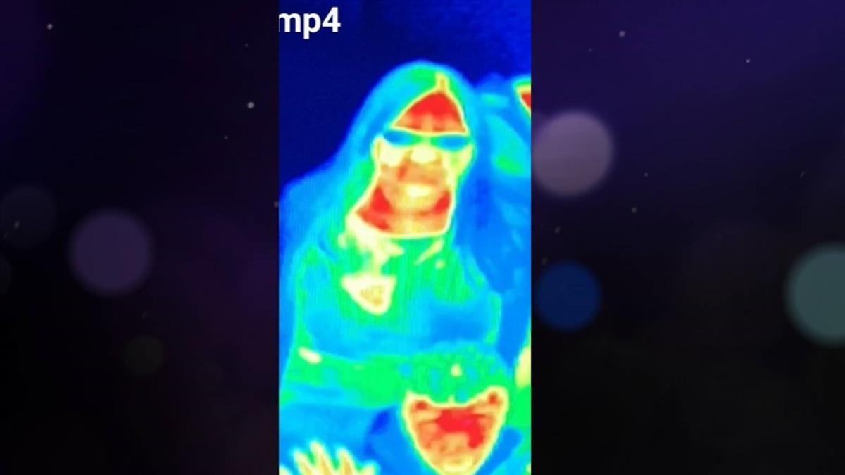 婦逛博物館…熱成像照出異黃斑!就醫竟罹乳癌