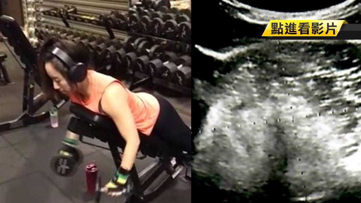 用力下體就出血!健身女教練竟長10cm畸胎瘤