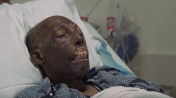 不願移植白皮膚!68歲翁毀容 等6年換臉重生
