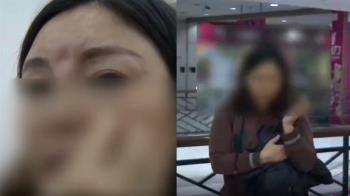 尪嫌醜才離婚!女砸250萬整容…一壓臉秒崩潰