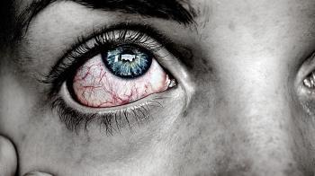 女敷5天電熱眼罩!雙眼突爆痛 醫驚:差點失明