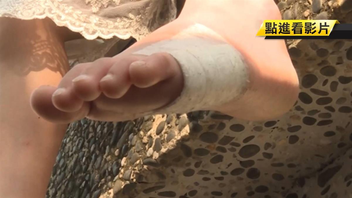 女童遭水療池割傷險掉肉 控渡假村醫藥費都不付