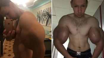 假二頭肌!男手臂注射3KG凡士林…肌肉爛險截肢