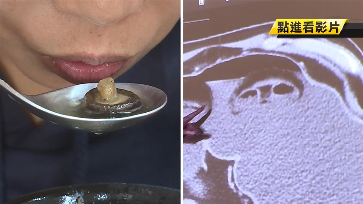 男吃香菇雞湯送急診!醫揭原因:恐腸壞死