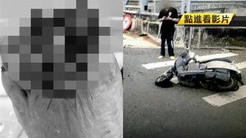 車禍腳趾頭截肢!婦人控肇事駕駛假和解