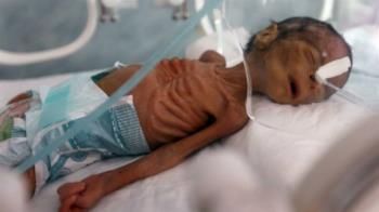 葉門內戰5年未歇!男嬰瘦如骷髏… 網超心痛