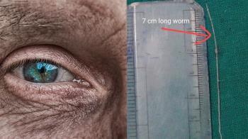 12年前被狗咬!老翁右眼劇痛 開刀拉出7cm寄生蟲