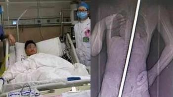 13歲男墜樓遭4m鋼筋刺穿 心臟一縮保命