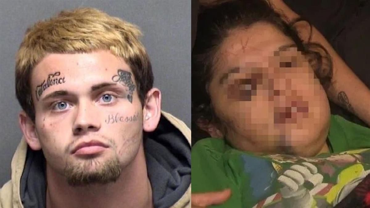 惡男吵架痛毆女友 竟拿刀在她額頭刻名字